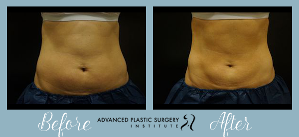 Before and After CoolSculpting at Advanced Plastic Surgery Institute.