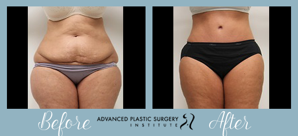 Before and After Tummy Tuck at Advanced Plastic Surgery Institute.