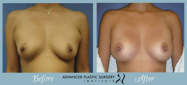 Before and After Breast Augmentation with Dr. Josh Olson