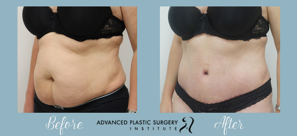 Post Pregnancy Tummy Tuck