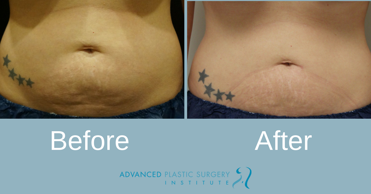 Real Coolsculpting Patient Before and After Treatment