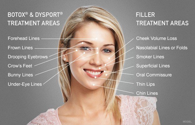 BOTOX® & Dysport® Treatment Areas