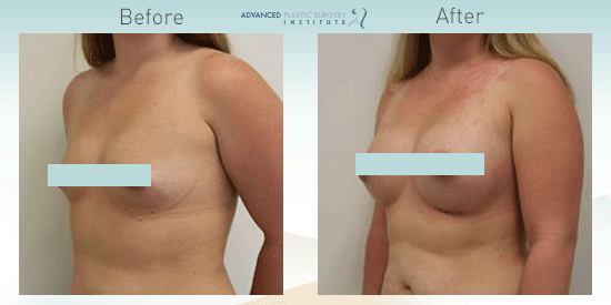 This woman had breast augmentation near Gilbert, AZ to improve her breasts' volume and shape.