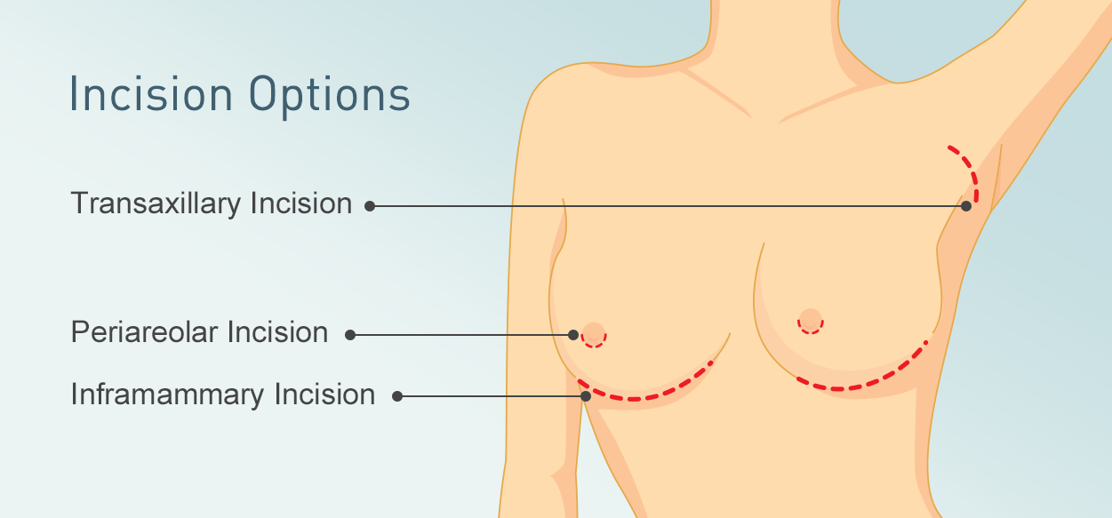 Incision Options