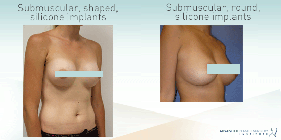 See before-and-after images from breast augmentation patients in Chandler, AZ.