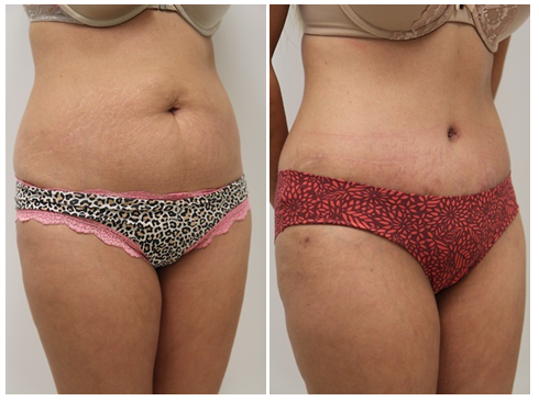 Tummy Tuck before-and-after photos for a patient with Scottsdale plastic surgeon Dr. Josh Olson.