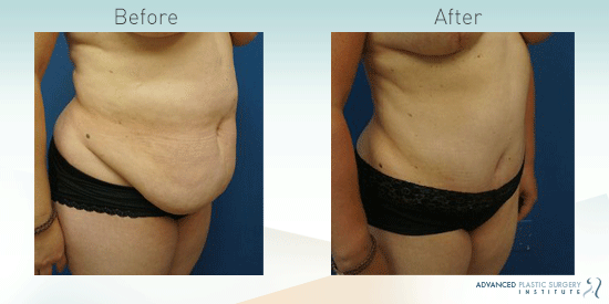 See more before-and-after pictures of tummy tuck patients in Chandler, AZ.